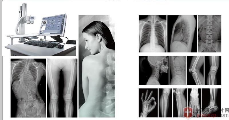 老挝乌都姆赛省盛龙国际医院-全数字X光机(DR)